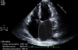 Cette magnifique oreillette gauche vous est offerte par Philippe, cardiologue auteur du superbe (et drôle) blog http://echocardioblog.com/